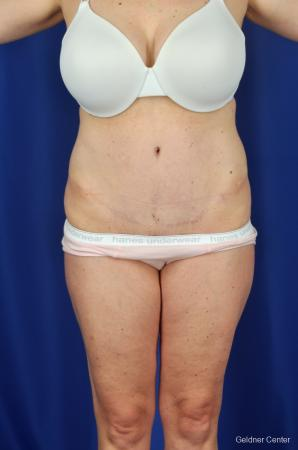 Tummy Tuck: Patient 7 - After Image 1