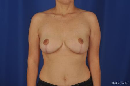 Chicago Breast Reduction 2068 - After Image
