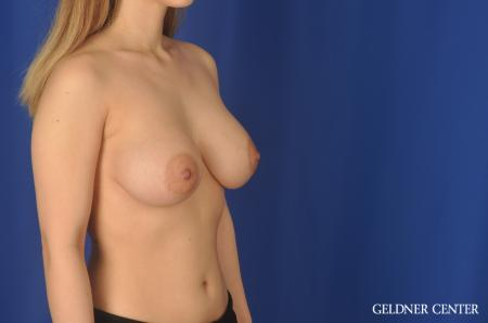 Breast Augmentation Lake Shore Dr, Chicago 11849 -  After Image 3