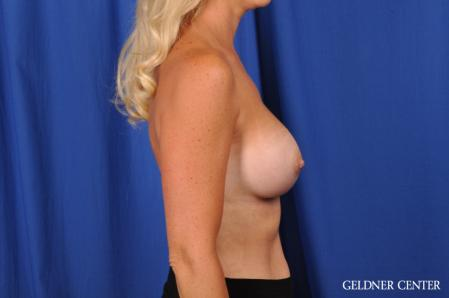 Breast Augmentation: Patient 186 - After Image 3