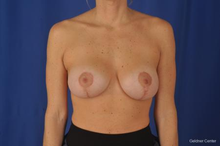 Breast Lift: Patient 20 - After Image 1