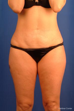 Vaser lipo patient 2520 before and after photos -  After Image 1