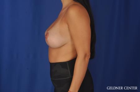 Breast Lift: Patient 23 - After 4