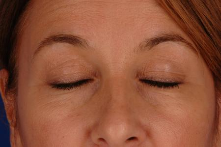 Eyelid Lift Lake Shore Dr, Chicago 2338 - Before and After Image 2