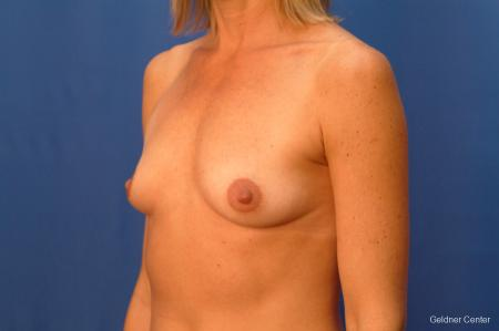 Breast Augmentation Lake Shore Dr, Chicago 2446 - Before and After Image 3
