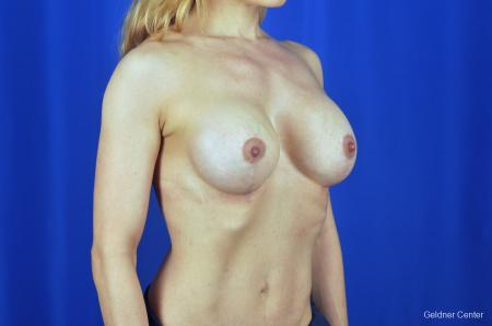 Chicago Breast Lift 2072 -  After Image 3