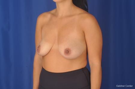 Breast Augmentation: Patient 78 - Before and After Image 5