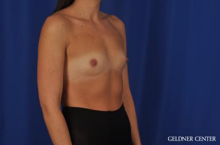 Breast Augmentation Hinsdale, 4290 - Before Image 2