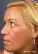 Chicago VI chemical peel patient 2313 before and after photos - After Image