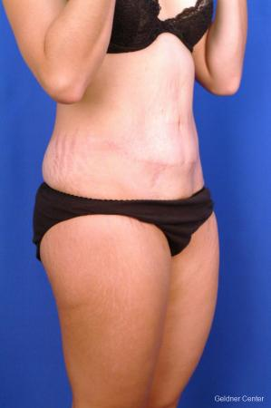Tummy Tuck: Patient 11 - After Image 3