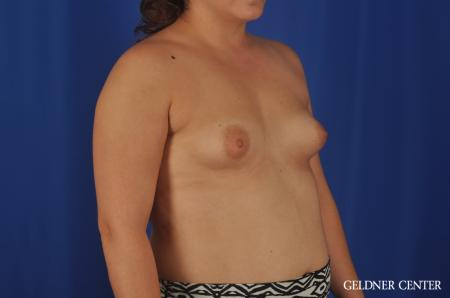 Breast Augmentation Hinsdale, Chicago 5466 - Before Image 2