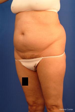 Vaser lipo patient 2536 before and after photos - Before and After Image 4