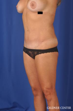 Abdominoplasty: Patient 5 - After Image 2