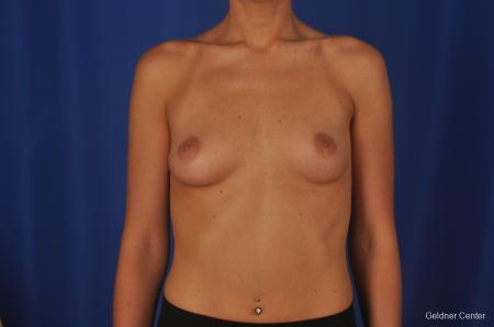 Chicago Complex Breast Augmentation 2381 - Before Image