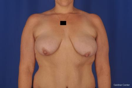 Breast Lift: Patient 18 - Before Image 1