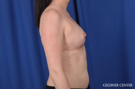 Breast Augmentation: Patient 135 - Before Image 2