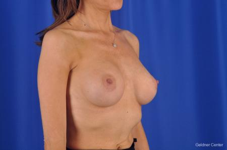 Breast Lift Chicago 2296 -  After Image 3