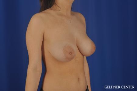 Chicago Breast Reduction 8752 - Before Image 3