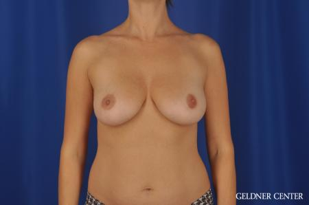 Chicago Breast Augmentation 8746 - Before Image 1