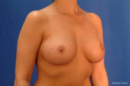 Chicago Breast Augmentation 2432 -  After Image 3
