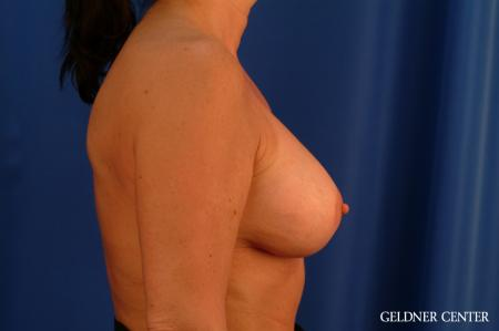 Chicago Breast Lift 2617 -  After Image 2