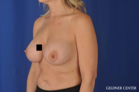 Complex Breast Augmentation Streeterville, Chicago 11971 -  After 4