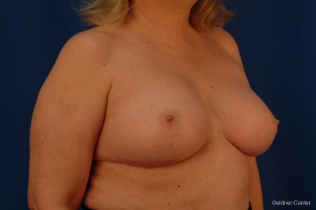 Complex Breast Augmentation Hinsdale, Chicago 2430 -  After Image 3