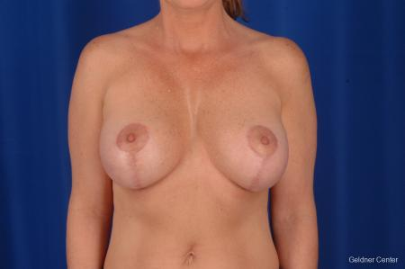 Breast Lift Lake Shore Dr, Chicago 2308 - After Image