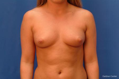 Chicago Breast Augmentation 2443 - Before Image 1