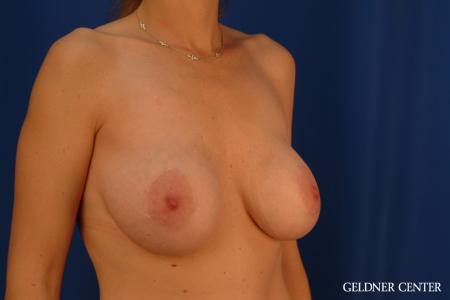 Complex Breast Augmentation: Patient 39 - Before Image 2