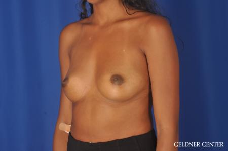 Chicago Breast Augmentation 11869 - Before Image 4