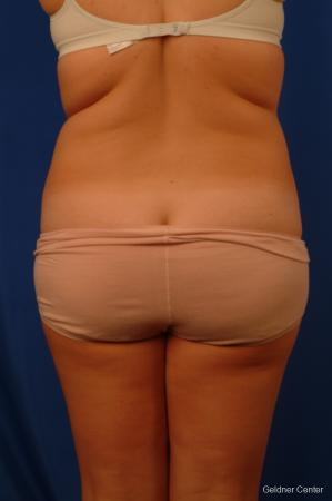Liposuction: Patient 12 - Before Image 4