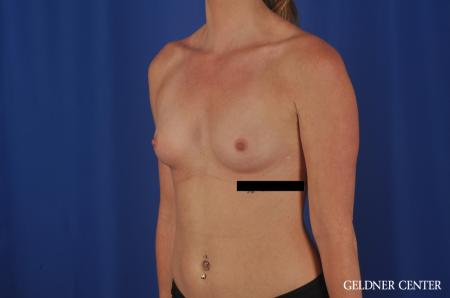 Breast Augmentation Lake Shore Dr, Chicago 6658 - Before and After Image 4