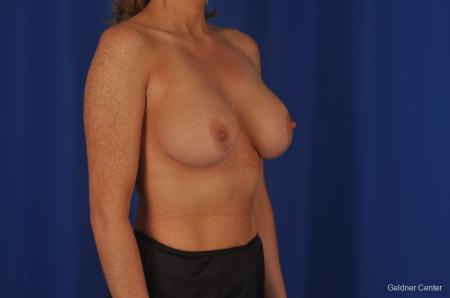 Chicago Breast Lift 2401 -  After Image 2