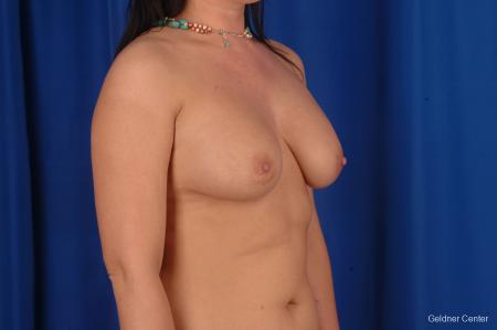 Chicago Complex Breast Augmentation 2288 - Before Image 3