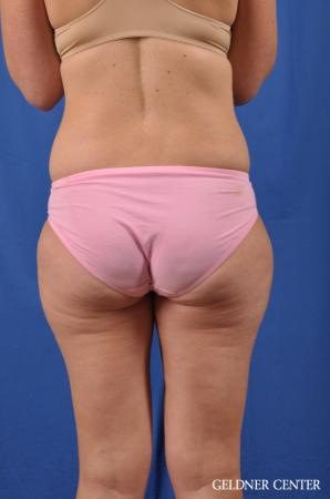 Liposuction: Patient 38 - Before and After Image 5