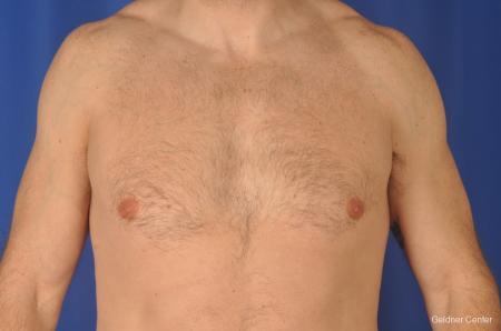 Gynecomastia: Patient 9 - Before Image