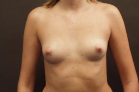 Chicago Breast Augmentation 2545 - Before Image 1