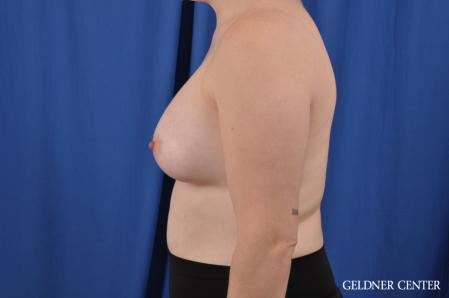 Breast Augmentation: Patient 178 - After Image 3