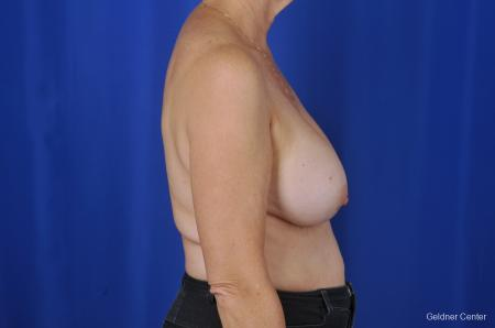 Breast Augmentation Lake Shore Dr, Chicago 2057 - Before Image 2