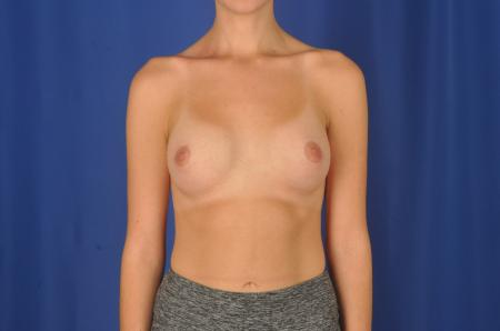 Breast Augmentation: Patient 82 - After Image 1
