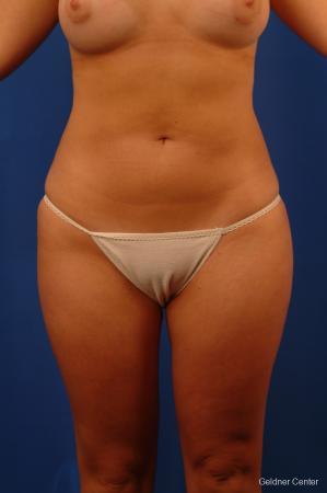 Liposuction: Patient 13 - After Image 1