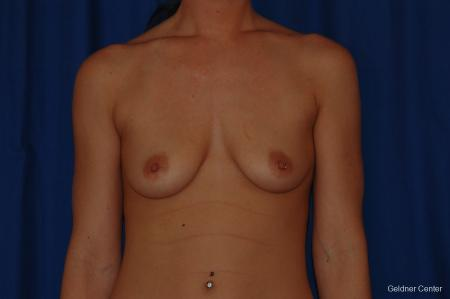 Breast Augmentation Streeterville, Chicago 2071 - Before Image