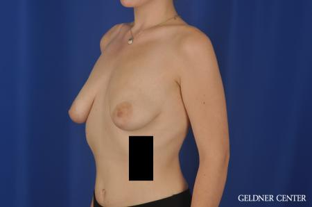 Breast Augmentation Streeterville, Chicago 5547 - Before and After Image 4