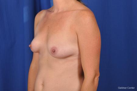 Breast Augmentation Hinsdale, Chicago 2531 - Before and After Image 5