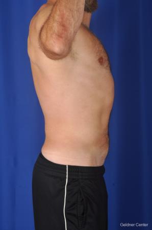 Liposuction For Men: Patient 7 - After Image 3