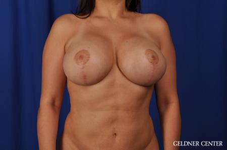 Chicago Breast Lift 5543 -  After Image 1