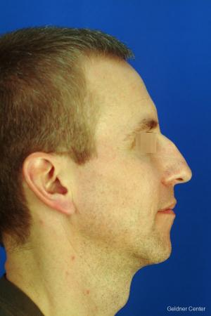 Rhinoplasty For Men: Patient 1 - Before Image 3