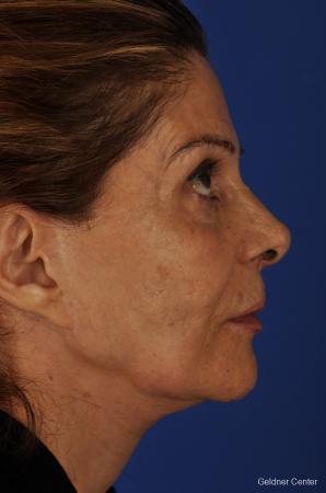 Facelift: Patient 4 - Before Image 2