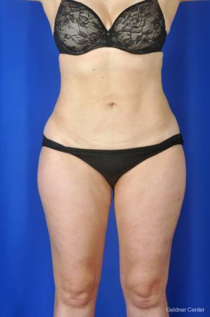 Liposuction: Patient 2 - After Image 1